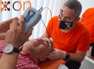 paralisis facial tratamiento logopeda