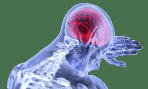 trombosis cerebral relacion covid 19